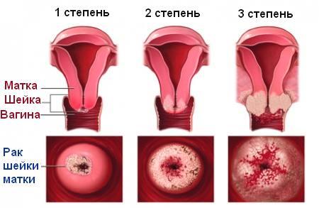 Как причина смерти женщин