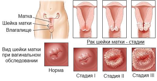 Удаление папиллом в домашних условиях криофарма